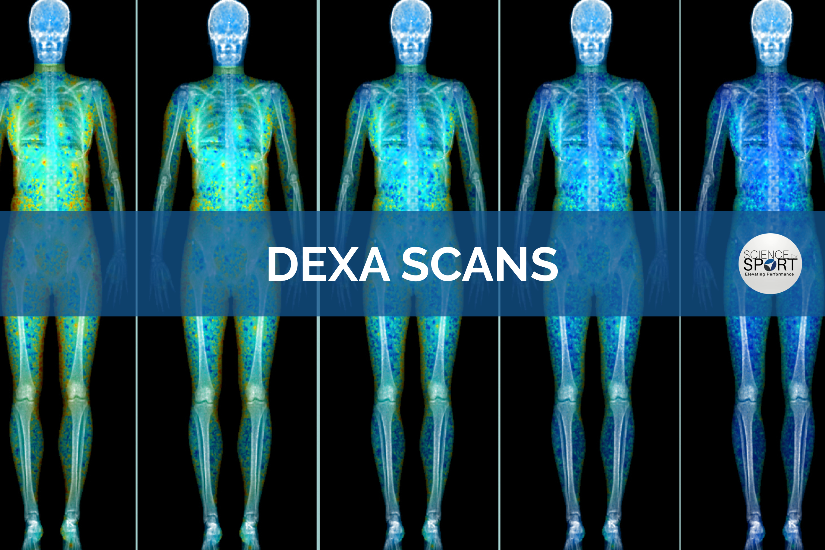 Dexa Scans Science For Sport